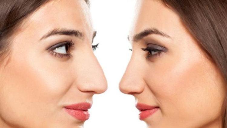 Еволюцията на формата на човешкия нос е повлияна от климата