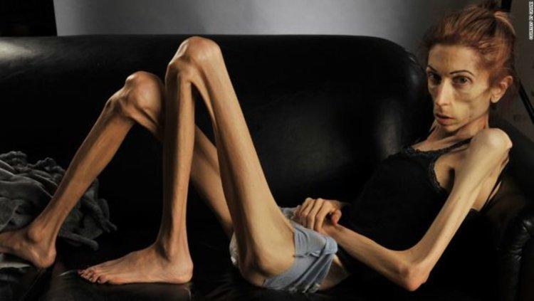 Откриха гени, свързани с анорексията и булимията