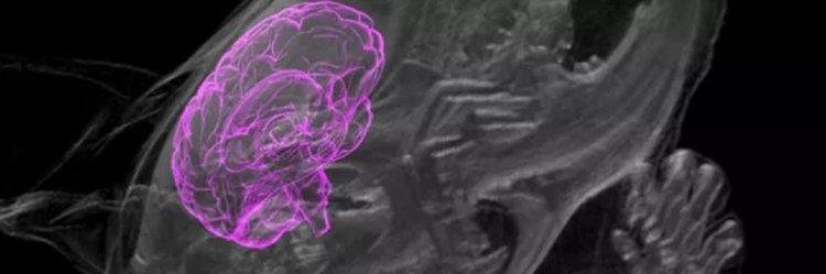 Имплантираха човешки мозъчни клетки в мозъка на жив плъх