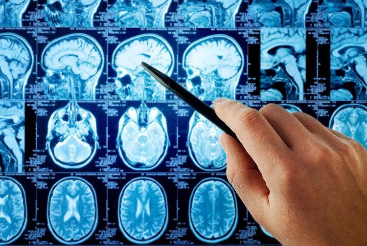 Изкуствен интелект определя IQ без тестове, по активността на мозъка